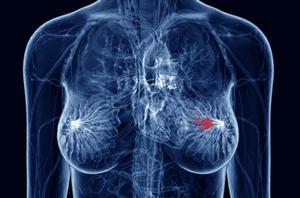 Brevettati geni cancro al seno e ovaie: lo studio rallenta, anzi, si ferma