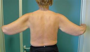 La brachioplastica: l'intervento per risollevare braccia cadenti