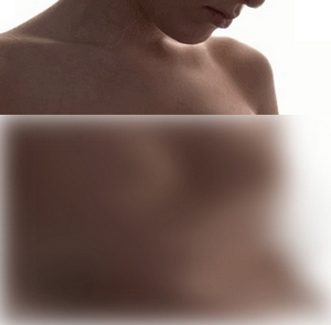 Mastopessia: il lifting al seno