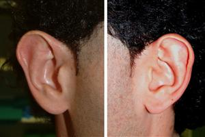 Otoplastica per le orecchie a sventola
