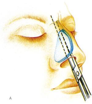 Rinoplastica: correggere i difetti del naso